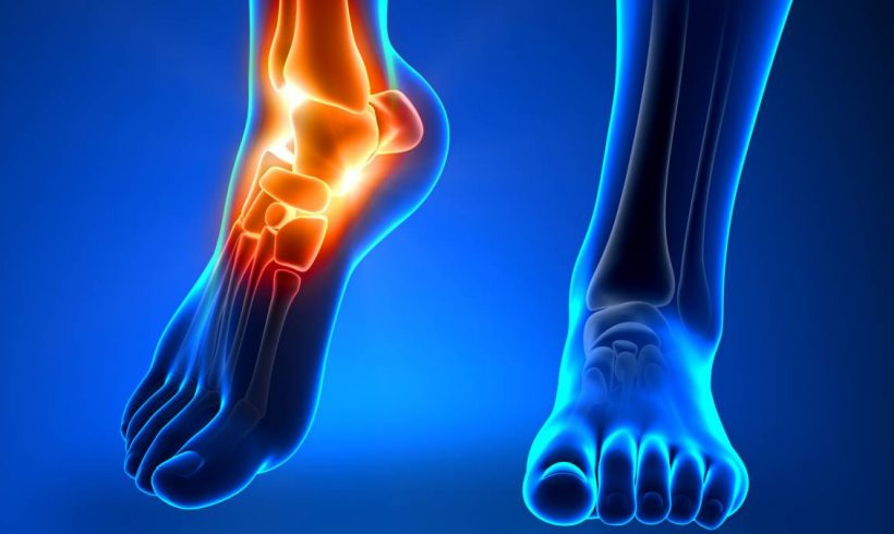 La importancia de la podología mecánica para evitar lesiones